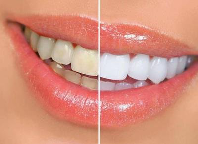 告别笑不露齿,学会科学护牙 这份护牙美牙攻略要收藏
